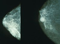 200px-Mammo_breast_cancer